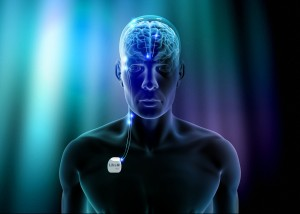 Libra-Deep-Brain-Stimulation