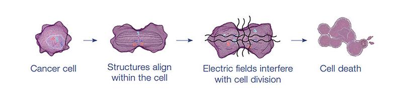 Tumour Treating Fields – A new treatment for Glioblastoma
